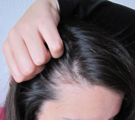 des trous dans les cheveux